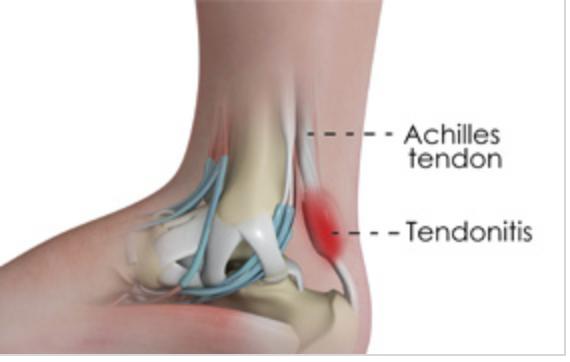 Achillestendinit